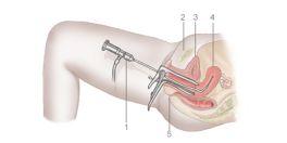 Post operative lasik care